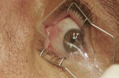 WER_Eye Test